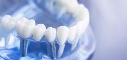 Zahnarztpraxis G11 in Baden-Baden bietet Implantate