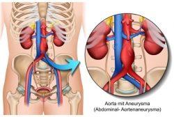 Wissenswertes über die Aorta