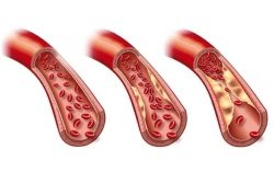 Aneurysmen an der Hauptschlagader (Aorta) regelmäßig untersuchen lassen