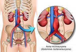 Was Sie über ein Bauchaortenaneurysma wissen sollten