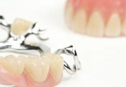 Worauf es beim Zahnersatz ankommt – Infos aus Vaihingen / Enz