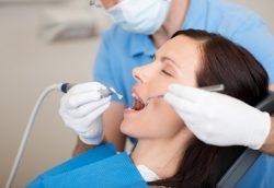 Weiße Zähne – professionelle Zahnreinigung in Vaihingen / Enz