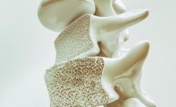 Kleiner Ratgeber: Knochendichtemessung und Osteoporose