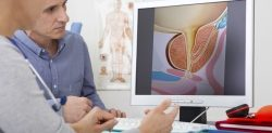 Prostatakrebs mit Ultraschall behandeln