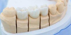 Zahnarzt aus Vaihingen / Enz: Kleiner Ratgeber zum Zahnersatz