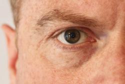 Symptome und Therapie bei Glaskörpertrübung