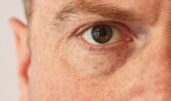 Trockene Augen – Hilfe beim Augenarzt in Neuss